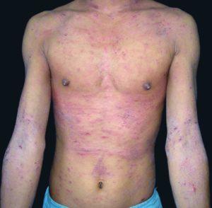 Пример заболевания у юноши