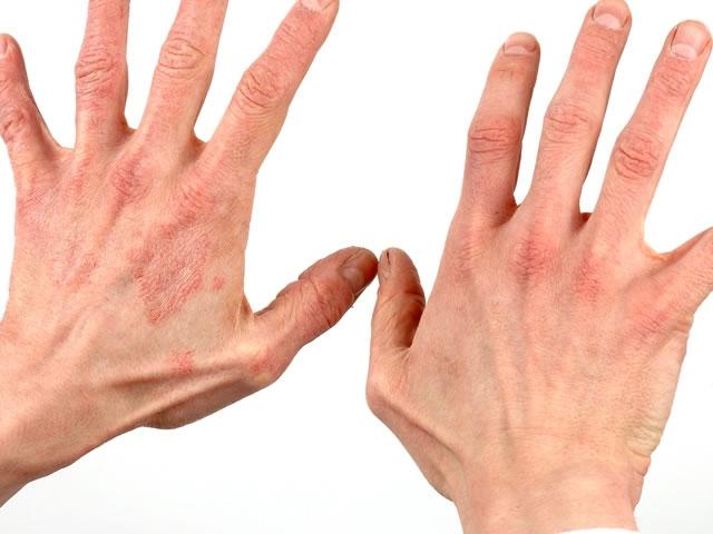 Аллергический тип болезни