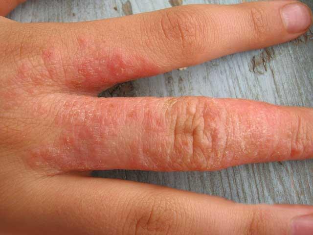Как выглядит аллергия на бытовую химию