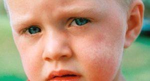 Белое пятно на щеке у ребенка