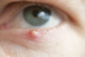 Фоликулит как одна из форм дерматита