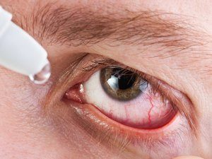 Закапывание глаз лекарством