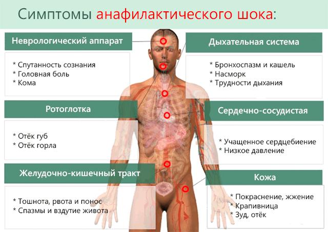 Симптомы анафилаксии