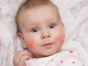 Сыпь при аллергии на БКМ