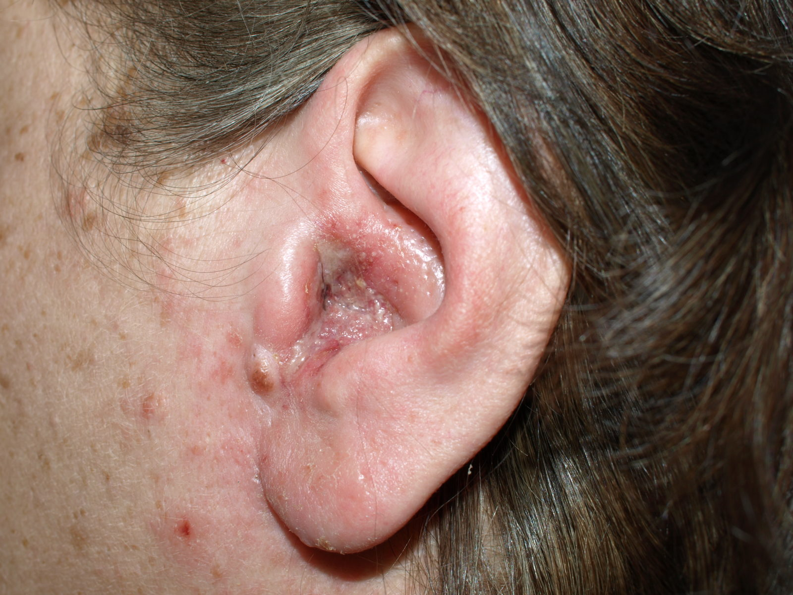 Ушной дерматит у девушки