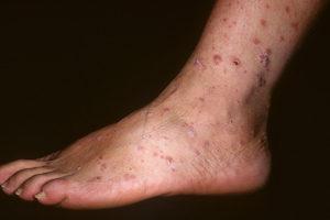 Псориаз на ноге