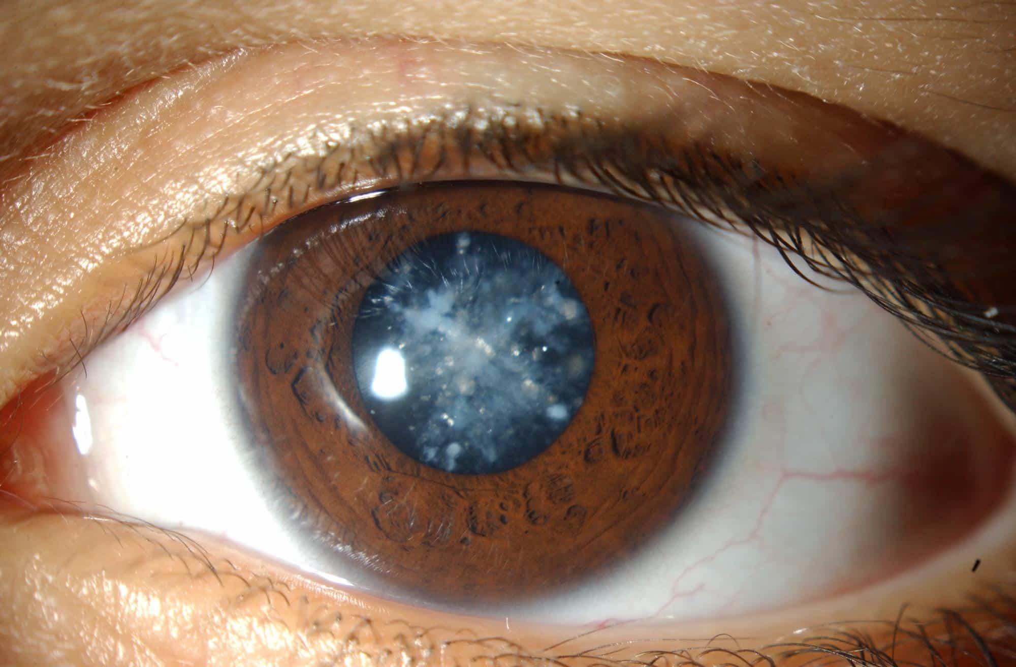 Закрытый тип глаукомы