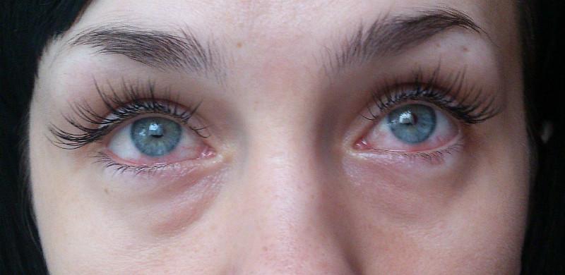 Аллергия после наращивания