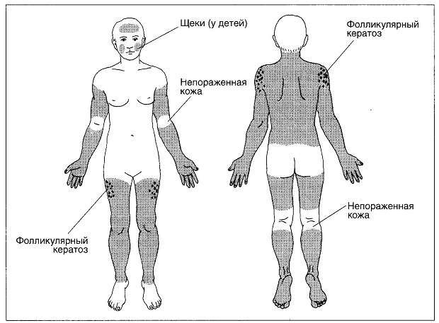 определенные места на теле