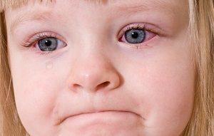 Красные глаза - признак аллергии