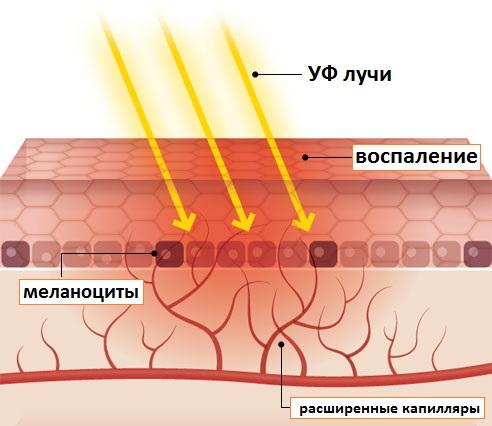 Процессы в коже при загаре