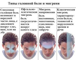 виды головной боли и мигрени