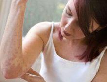 Хроническая крапивница: причины, симптомы и лечение