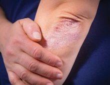 Особенности проявления и лечения псориаза на теле человека