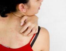 Лучшие средства для лечения атопической формы дерматита