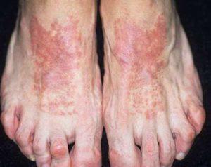 Пример того как выглядит заболевание