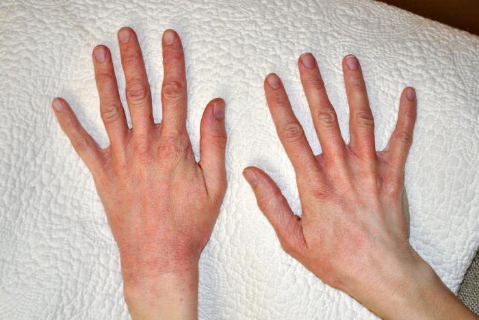Пример того, как обычно выглядит солнечный дерматит
