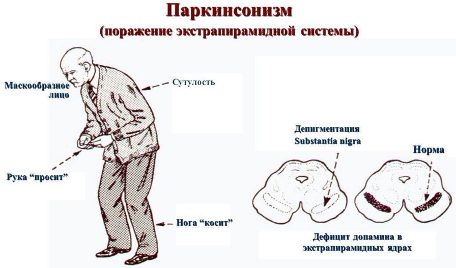 Болезнь паркинсона наглядная картинка