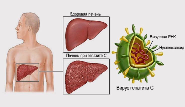 Вирусный гепатит наглядная картинка