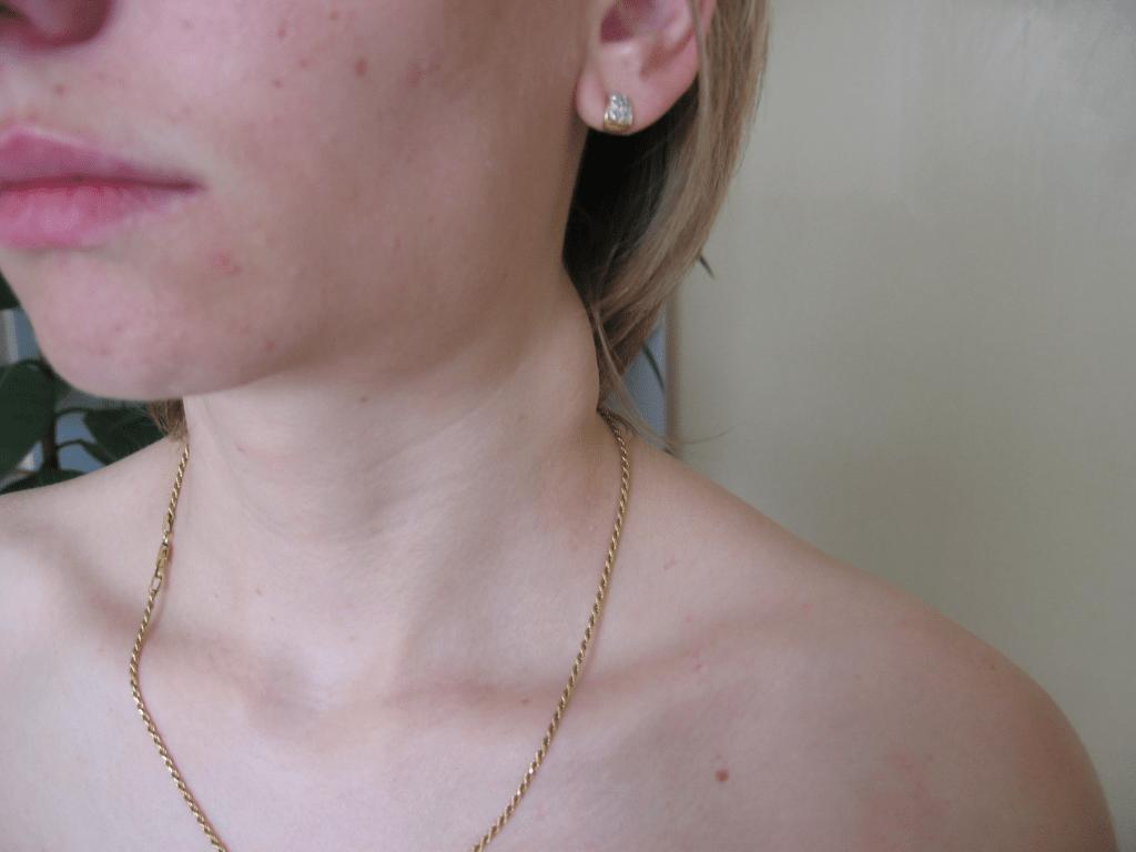 Лимф на шее