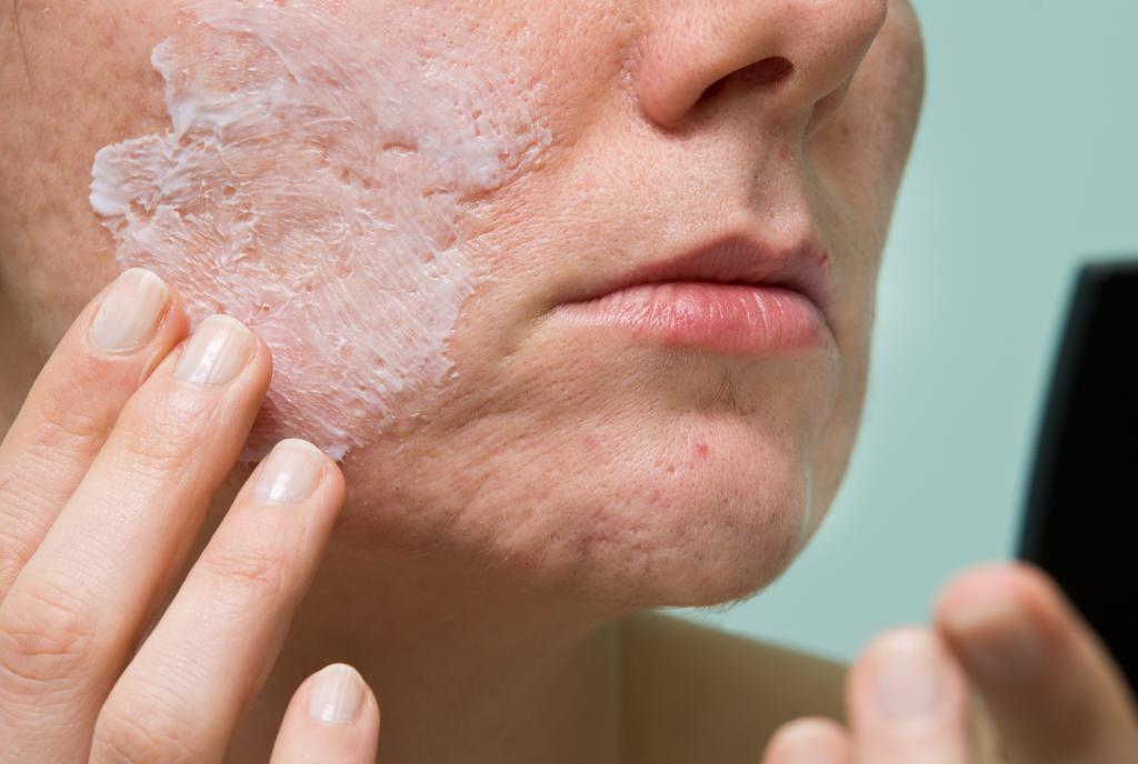 Применение средства на больной коже