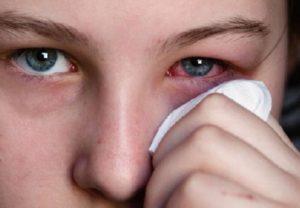 Красные глаза при аллергии