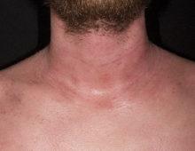 Пример дерматита у взрослого человека