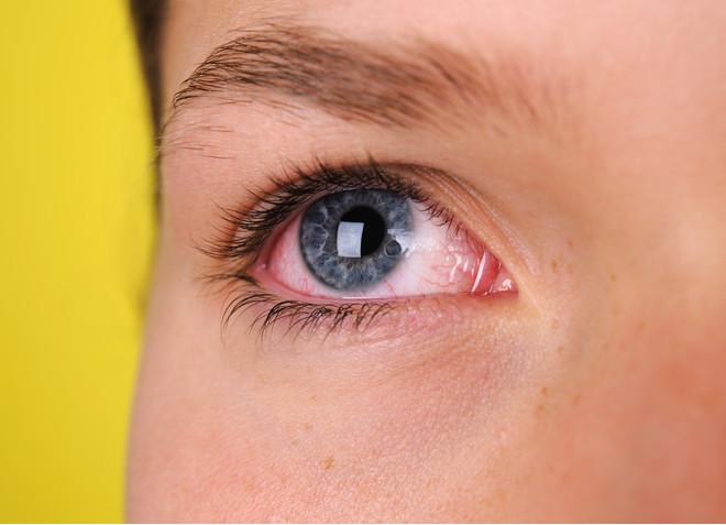 Покрасение глаз