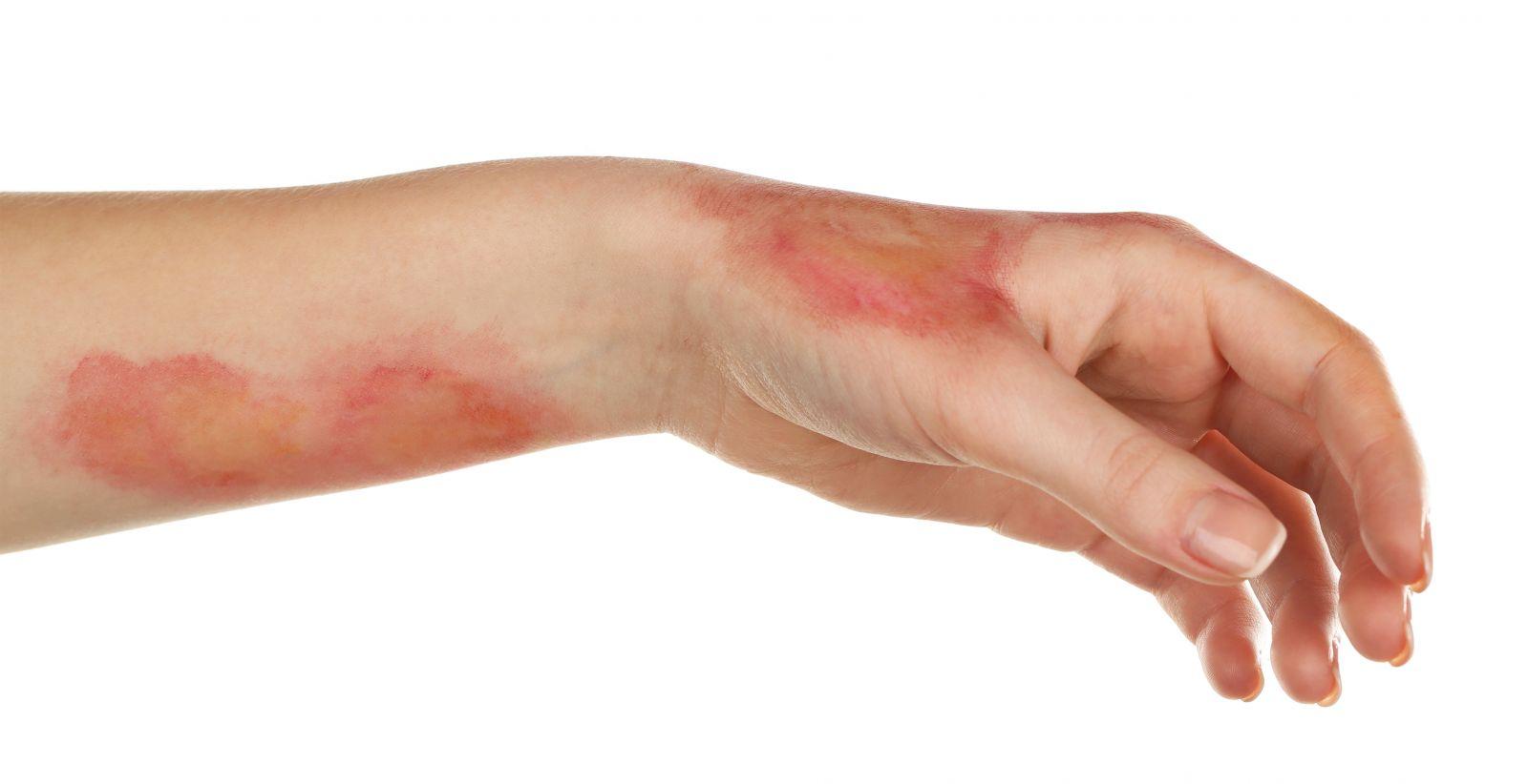 Ожог аллергический на коже человека