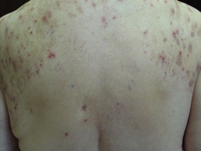 Солнечный дерматит лечение мази — Аллергия