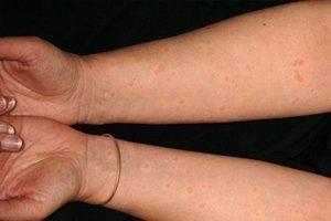 Чем отличается крапивница от аллергии