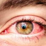 Аллергический коньюктивит