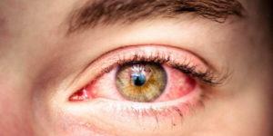 Аллергический коньюнктивит