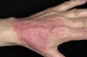 Аллергический дерматит