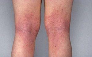 Сильная аллергическая сыпь