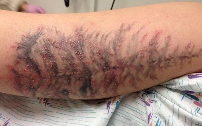 Аллергическая реакция на татуаж