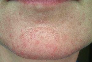 Аллергия на подбородке