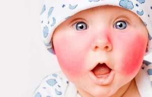 Как выглядит детский диатез фото