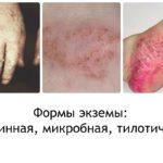 Аллергия на руках: фото, симптомы и лечение у детей и взрослых