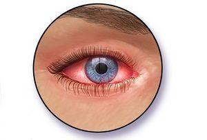 Конъюнктивит-воспаления слизистой глаза