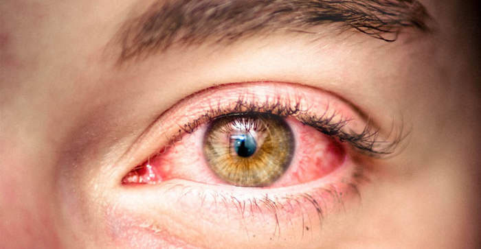 Красные глаза при аллергической реакции