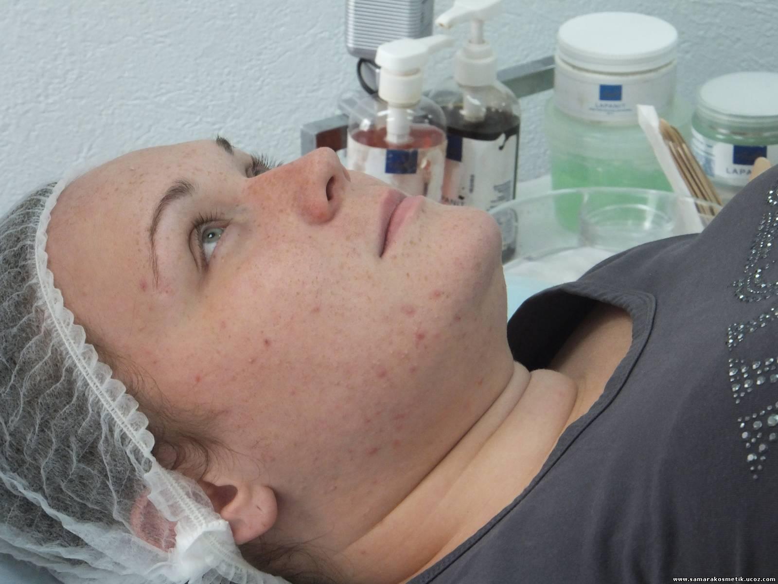 Осмотр дерматологом