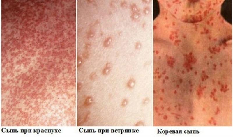 Сыпь при инфекционных заболеваниях