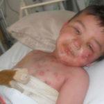 Высыпания на коже ребенка от нурофена