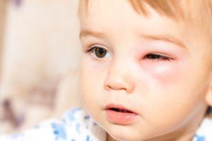 Отек глаза у ребенка