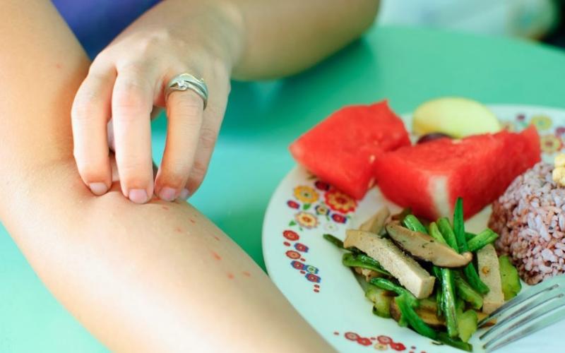 Пищевой тип аллергии