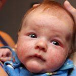 Как выглядит пищевая аллергия у грудничка: фото грудничков, ребенка, симптомы у новорожденных