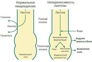 Расщепление лактозы