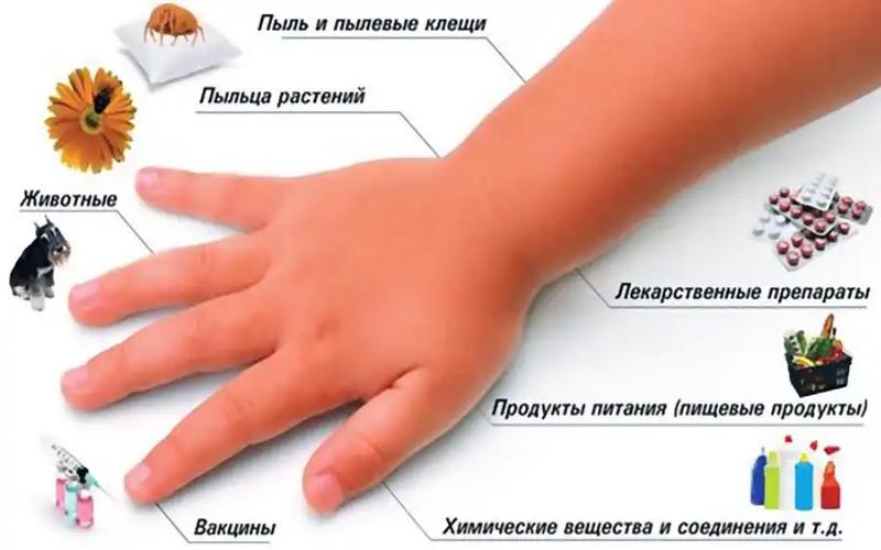 Разные возможные причины появления сыпи на коже