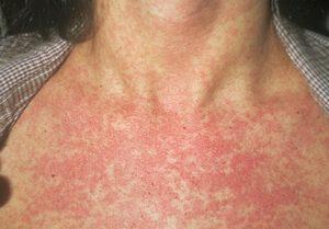 Аллергия на груди у женщины — Аллергия и все о ней